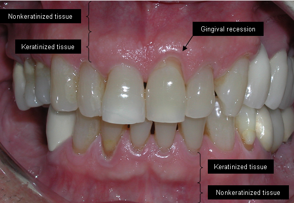 Receding Gums Causes Dangers And Treatments